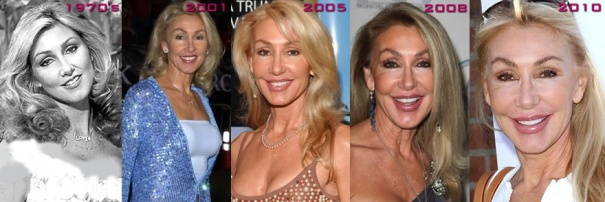 linda-thompson-plastic-surgery