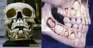child-skull-teeth